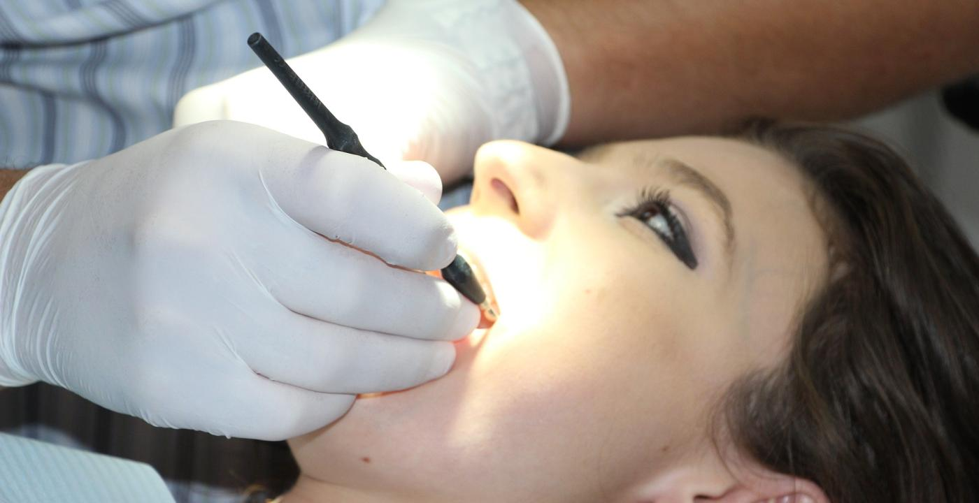 Parodontóza